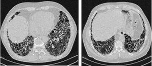 Fibrosis Pulmonar Idiopática (tomado de wikimedia commons)